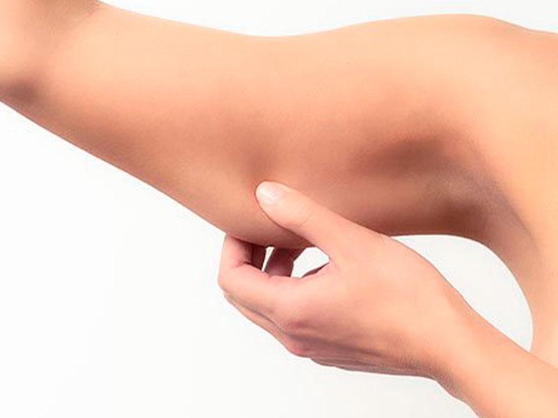 Microagulhamento para o Corpo Dra Telma Giordani