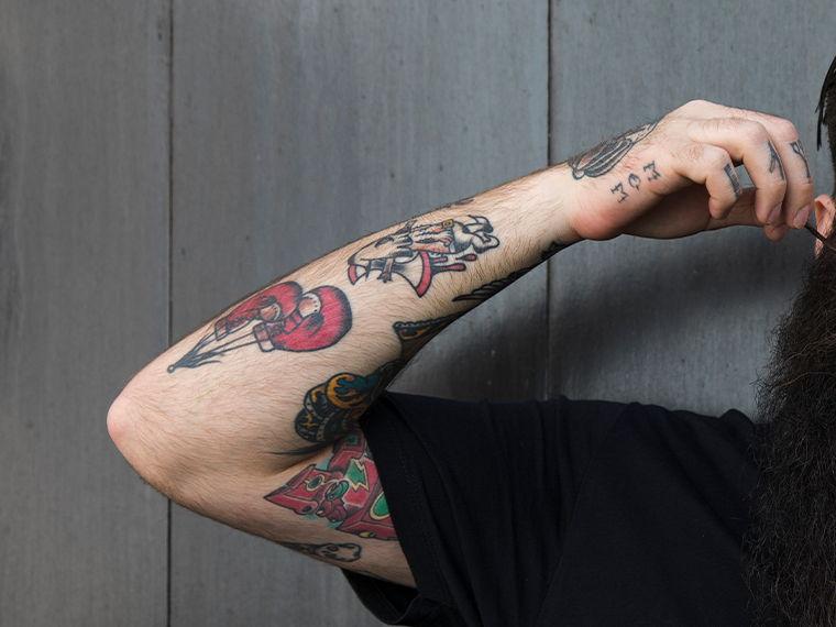remoção de tatuagem dra telma giordani