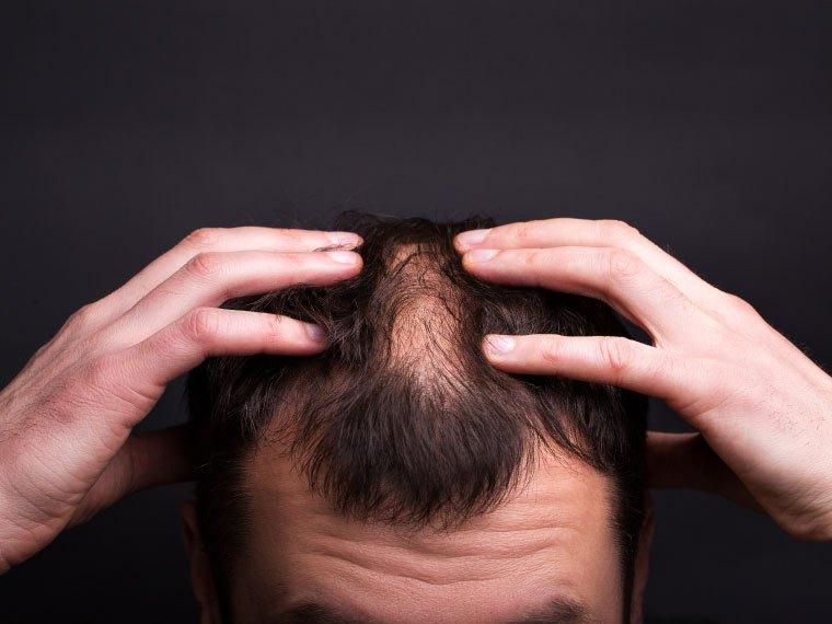 Imagem da altura da testa de um homem, que a franze. Sua cabeça está levemente inclinada para frente, enquanto ele toca o topo da região pelas laterais, ressaltando a falta de cabelos no centro.